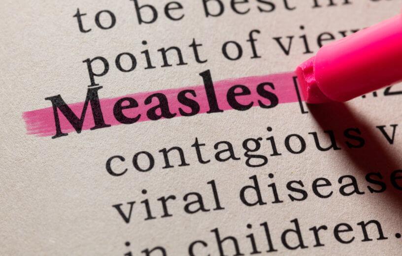 measles image